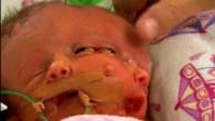 İki yüzlü doğan bebek yaşam mücadelesi veriyor