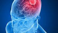 Beyin Ölümü sonrası Organ Nakli!