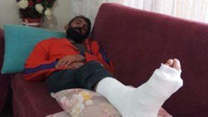 Amigo Nihat'ın  Ayağı Kırıldı
