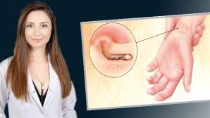Dermatoloji Uzm.Dr. Seda Yıldız'ın uyarısı: